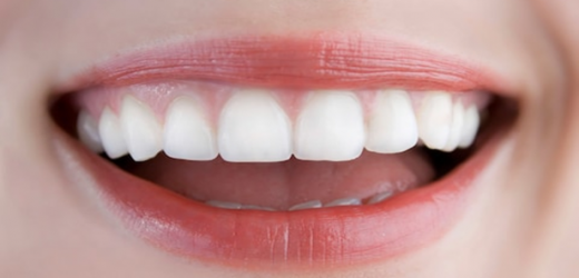 Teeth Whitening: Know More About Hydrogen Peroxide